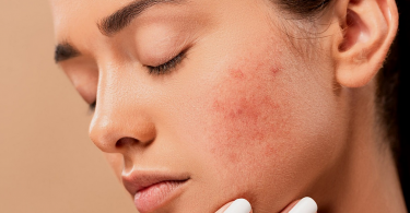 Solutions pour lutter contre l'acné
